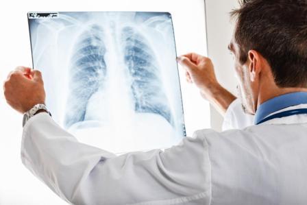 Эффективно ли лечение туберкулеза иммуномодуляторами